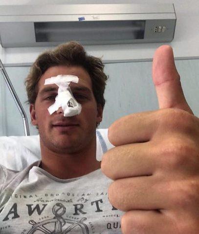 Luca Marziali operato setto nasale